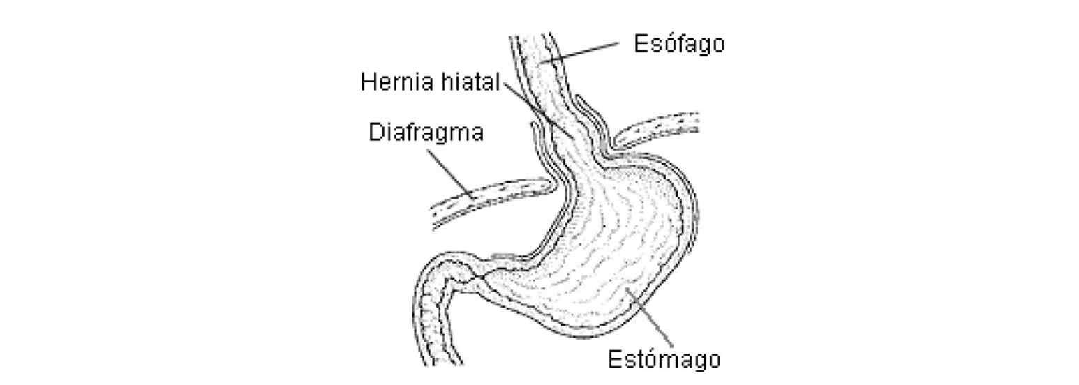 Reparación de hernia hiatal durante manga gástrica