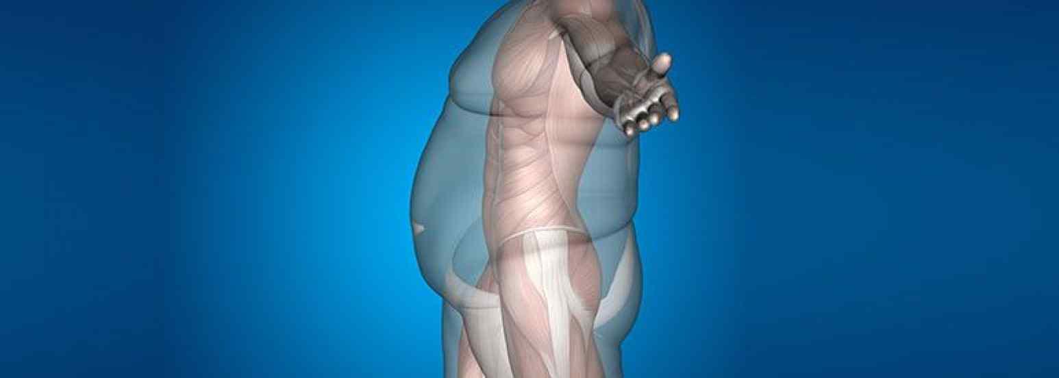 clasificacion de la obesidad