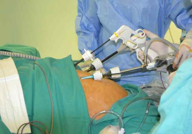 Intervención quirúrgica por laparoscopia