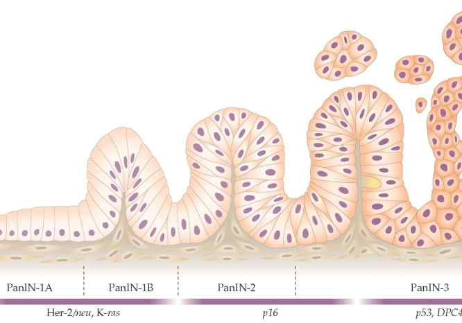 Adenocarcioma pancreático ductal