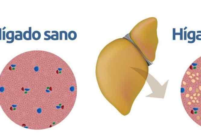 esteatosis hepática no alcohólica
